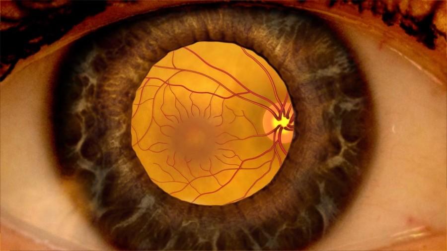 Разрыв сетчатки глаза: причины, симптомы, лечение, последствия