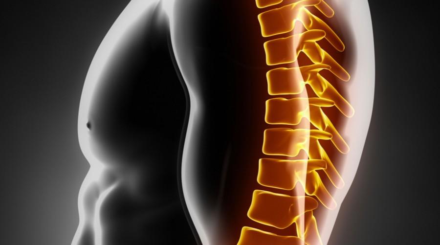 Хондроз грудного отдела позвоночника: симптомы, лечение